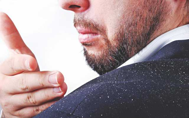 how to get rid of stubborn dandruff
